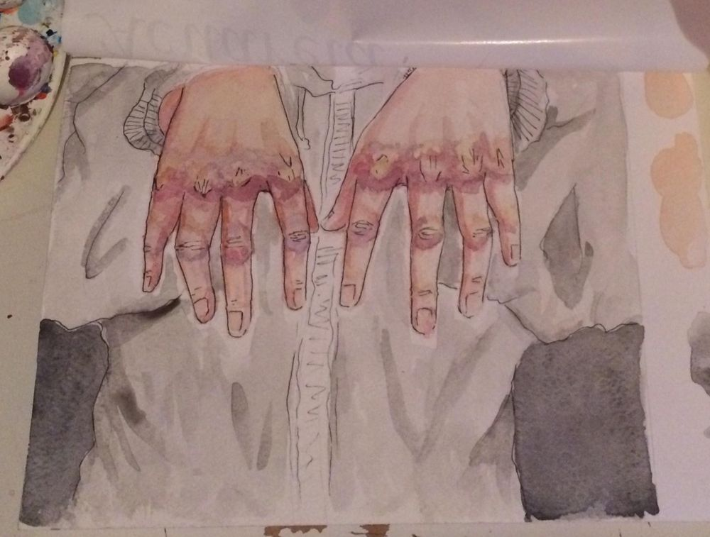 Bruises in hands - image 1 - student project