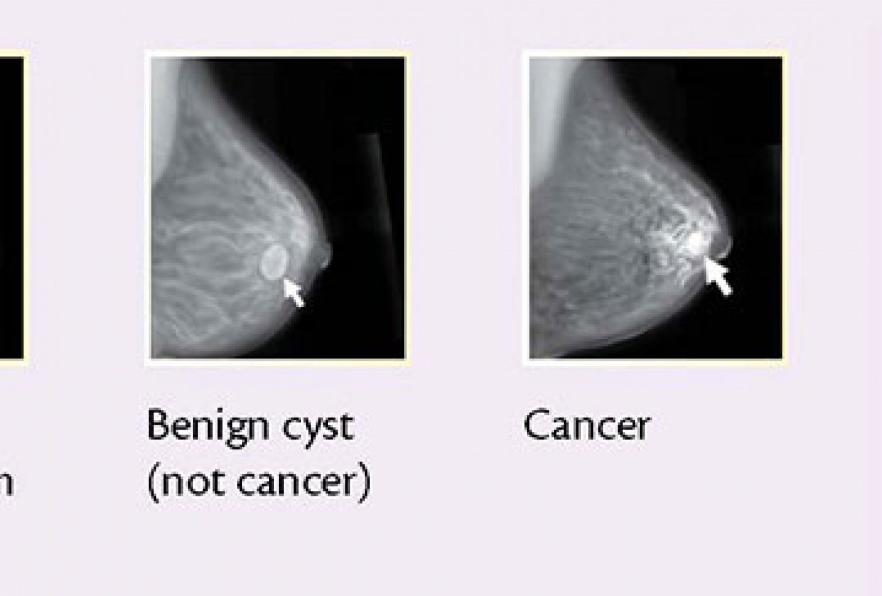 Mammogram nature - https://github.com/Diptoray/breast-cancer-mammography - student project